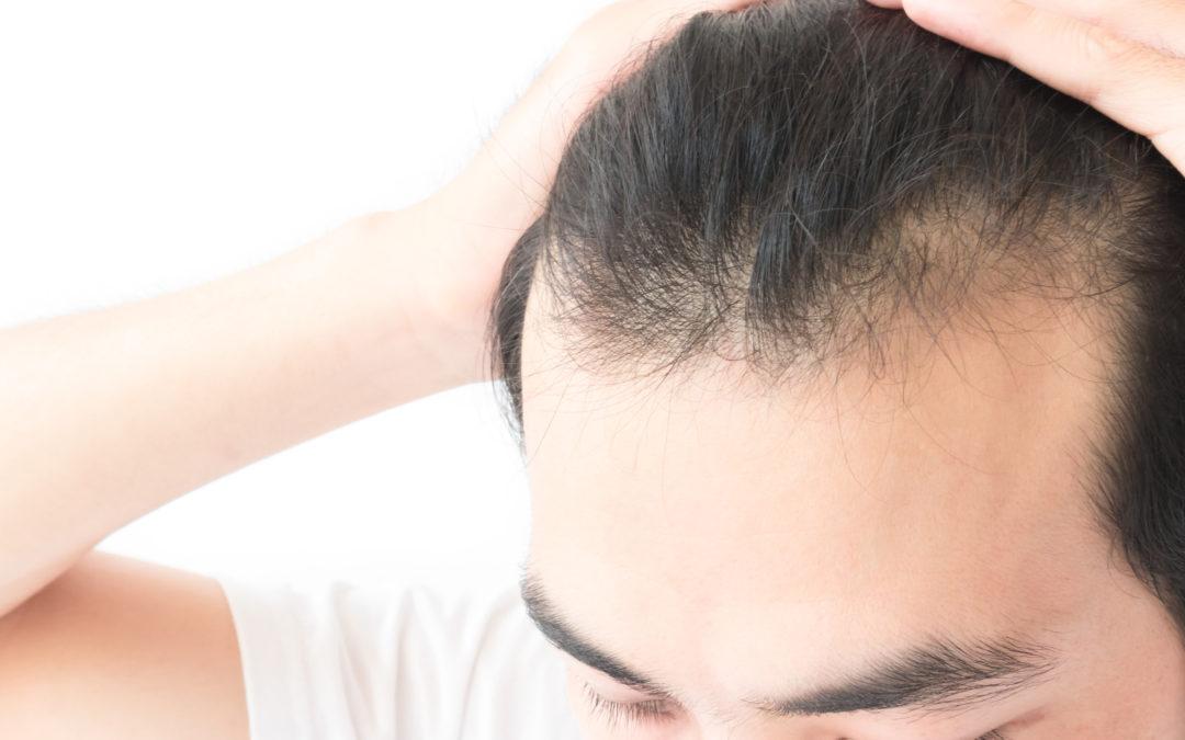 Explaining Alopecia